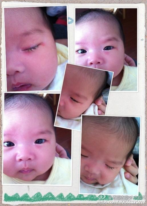 昨天发现我家宝宝眼屎多,流泪(见图片),请问是上火还是结膜炎?