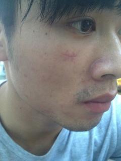 我脸上刀伤已经12天……