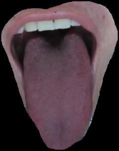 舌根长好多疙瘩怎么办