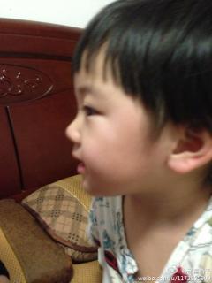 宝宝眼角边长了一块白……