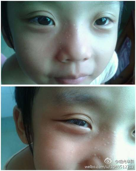 ,朋友的女儿脸上长了这些小白点,不痛不痒,有点像脂肪粒,小孩6岁图片