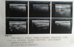 甲状腺左叶结节小于1……