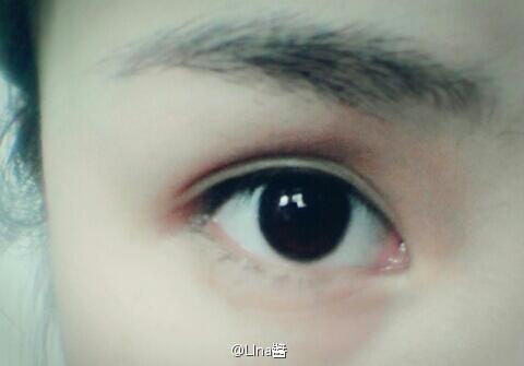 谁能告诉我眼睛总是酸酸然后会流眼泪是怎么回?