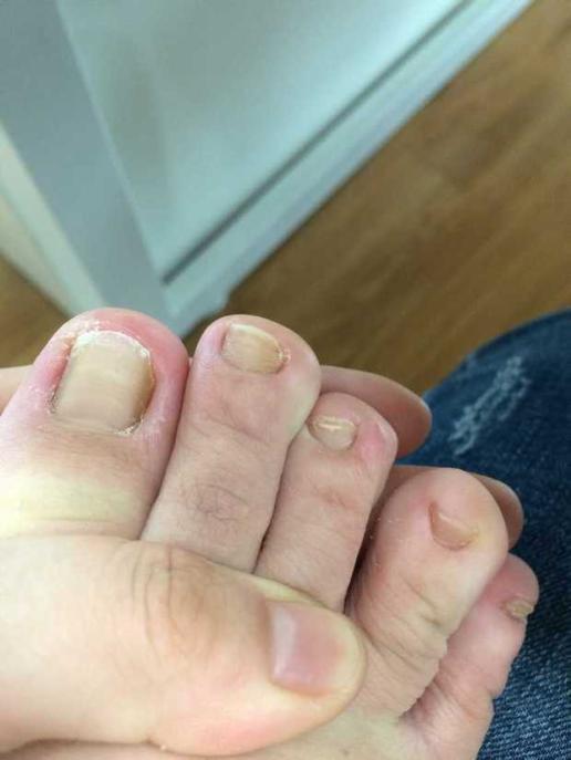 脚趾甲变厚变黄大脚趾还很痛怎么回事用什么药 br