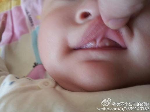 4个月的宝宝牙龈 上长白点怎么回事图片