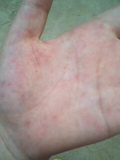 手掌心起的小红点,不……