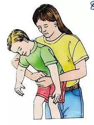 男子吃牛排噎食窒息 女友切开气管救其一命
