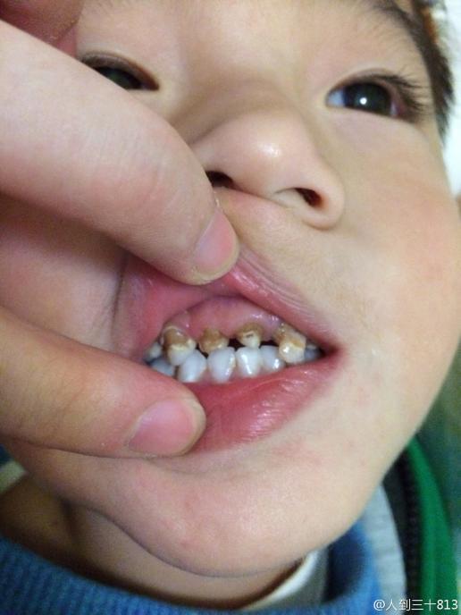四岁的宝宝牙齿已经成这个样子了,刚开始蛀时医生说没