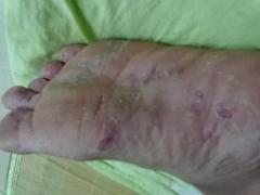 我的脚痒呀用什么药能……