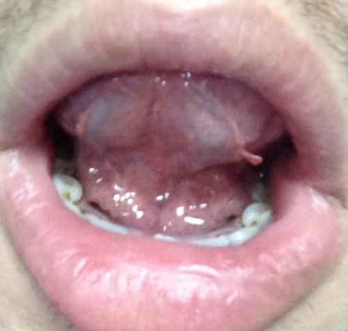 舌头上长疙瘩很疼