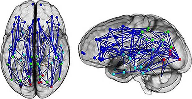 成年男性的脑部神经连接示意图
