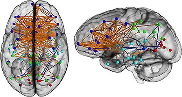 成年女性的脑部神经连接示意图