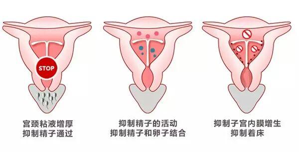 带环避孕的原理是什么_\