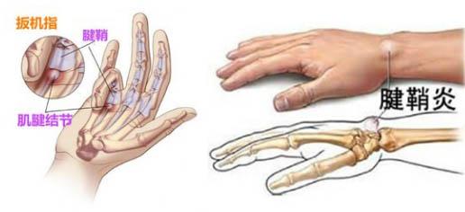 右手腕骨结构图