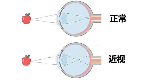"""近视改变了眼球结构,""""摘眼镜""""不可能恢复视力    光线通过屈光系统"""